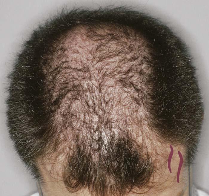 Bio la máscara agafi para el crecimiento de los cabello